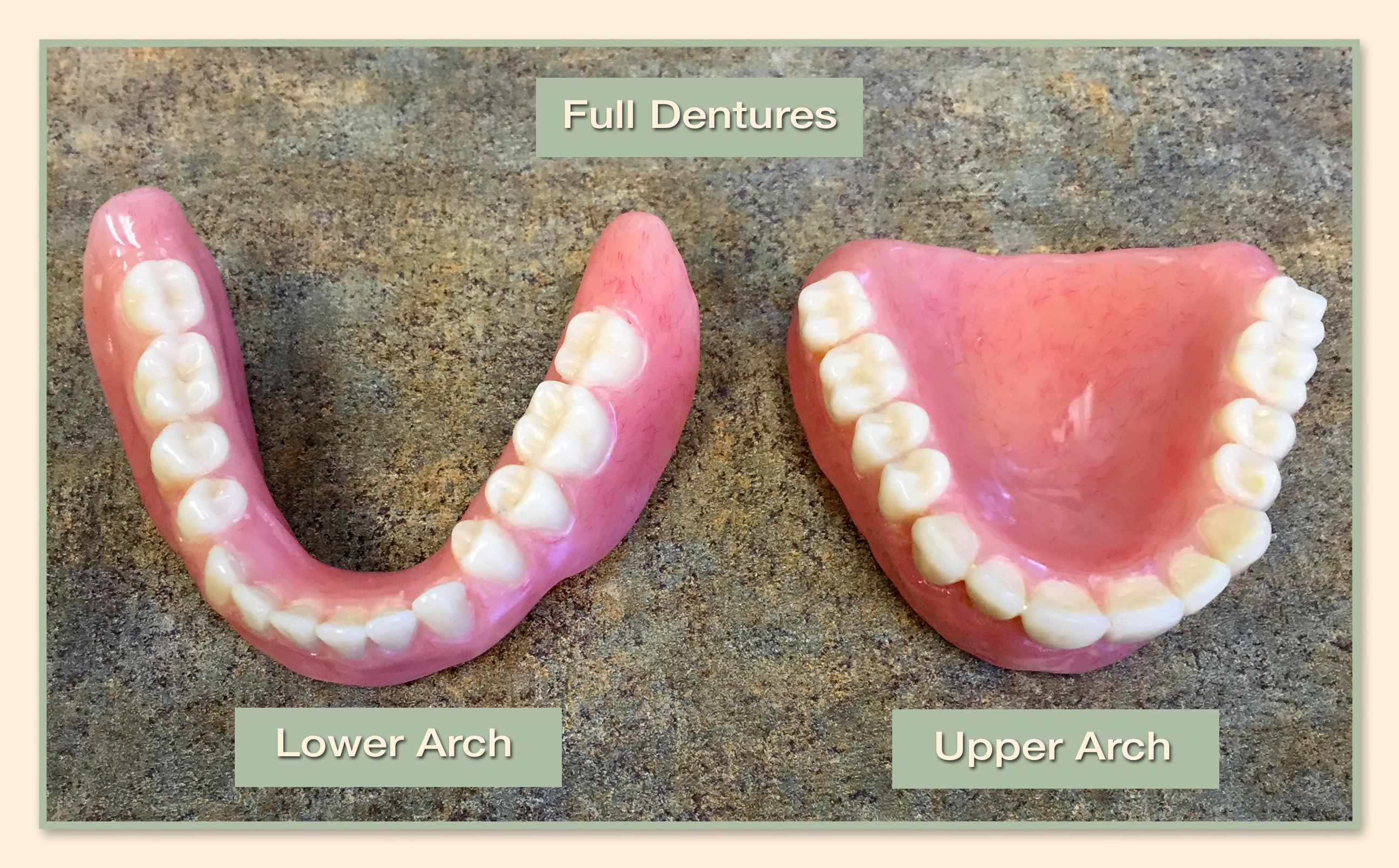 Family Dental Group - Full Dentures